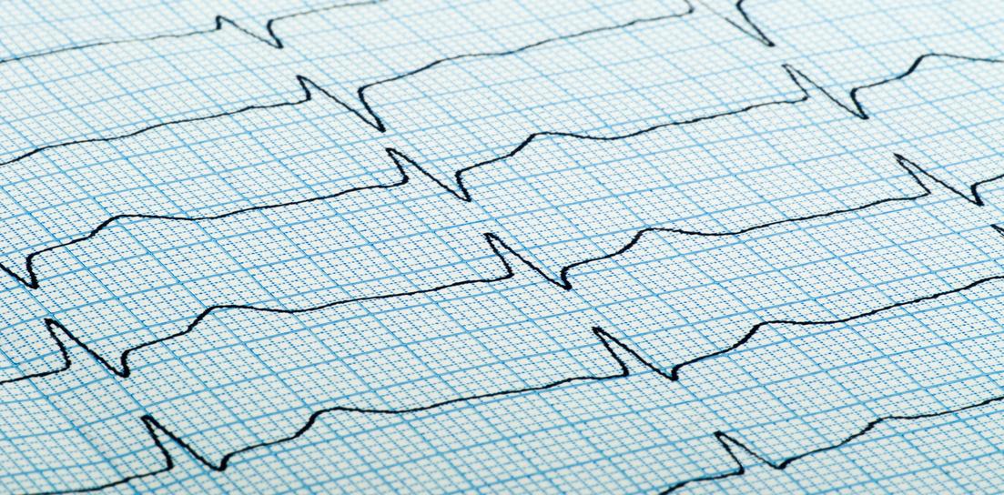 cardiogram of heart beat